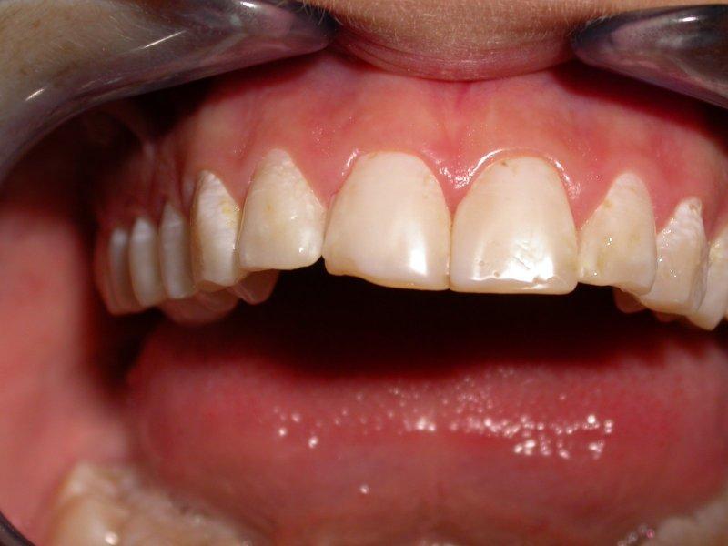 DSCN1511 - Image at Frenchs Forest Dental