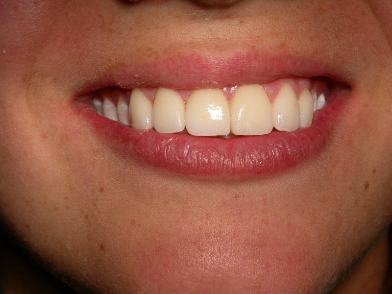 Smile - Image at Frenchs Forest Dental