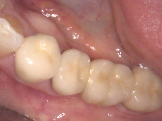 Frenchs Forest Dental - Tooth Colored A