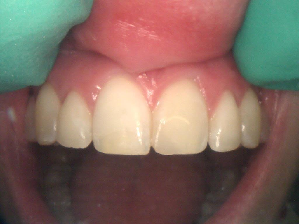 TT - Frenchs Forest Dental