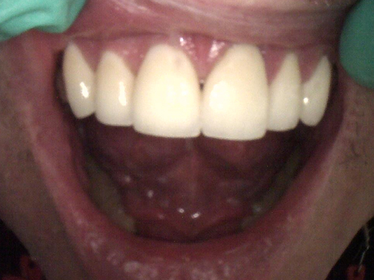 Tooth Colored Filling 2- Frenchs Forest Dental