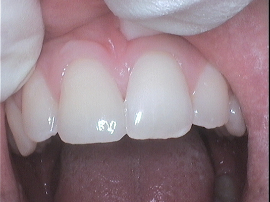 Resin Repair- Frenchs Forest Dental