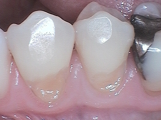 Resin B - Frenchs Forest Dental