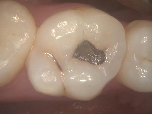 A1 Frenchs Forest Dental