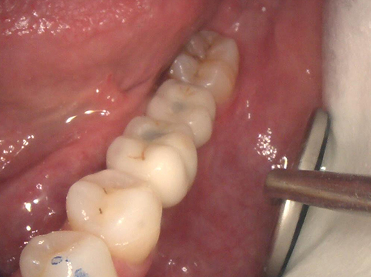 Implant 3 - Frenchs Forest Dental