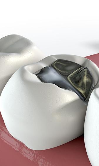 Dental Image at Frenchs Forest Dental