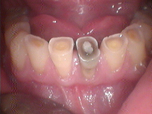 Tooth Colored Filling 3- Frenchs Forest Dental