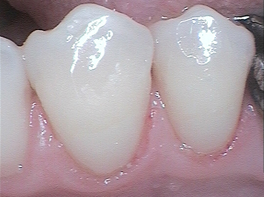 Resin A - Frenchs Forest Dental
